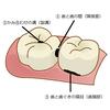 お口の豆知識その6 「むし歯になりやすい場所」の画像