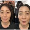 キセキの美容術 関式リフトアップの画像
