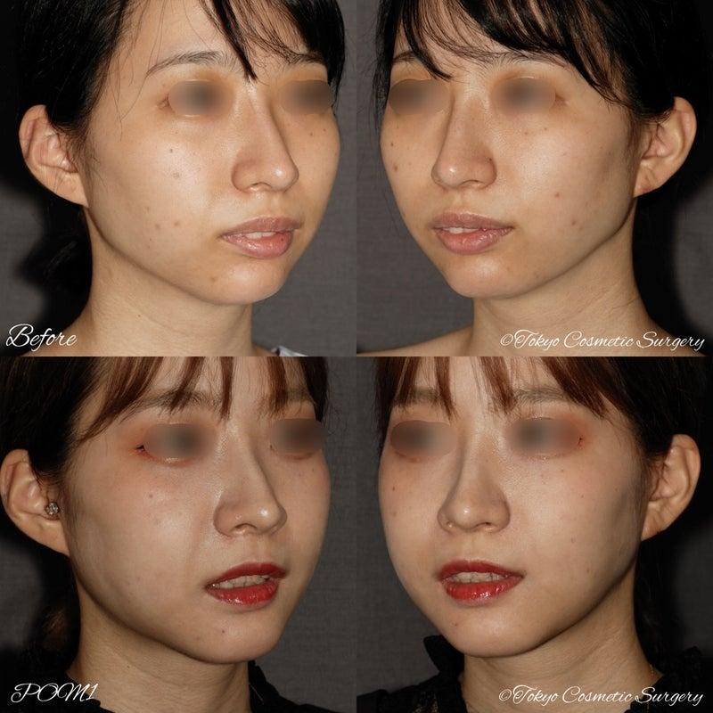 ゴボ口の治し方   東京美容外科 宮崎 邦夫 ドクターブログ