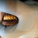 歯石除去イベント開催致しました☆そして第2弾!!の記事より