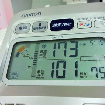 血圧がヤバいよヤバイよ!!