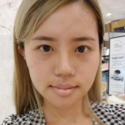 id鼻整形症例