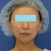 30代女性「サーマクールFLX300shot+ウルトラセルQプラス」治療後3ヶ月目の変化です。