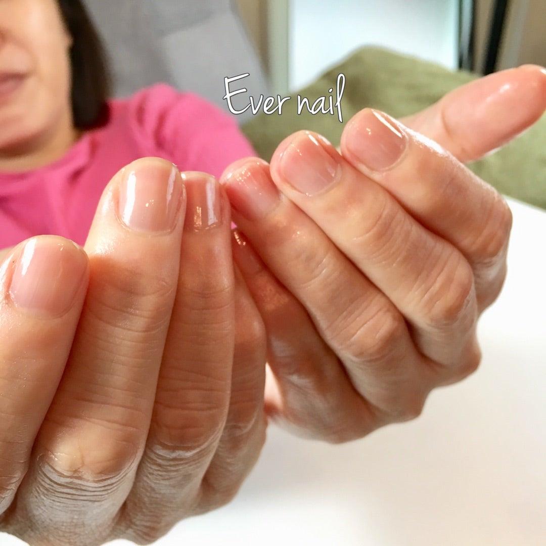 爪 が ボコボコ