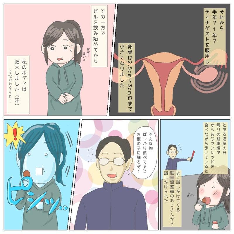 子宮内膜症 川崎希