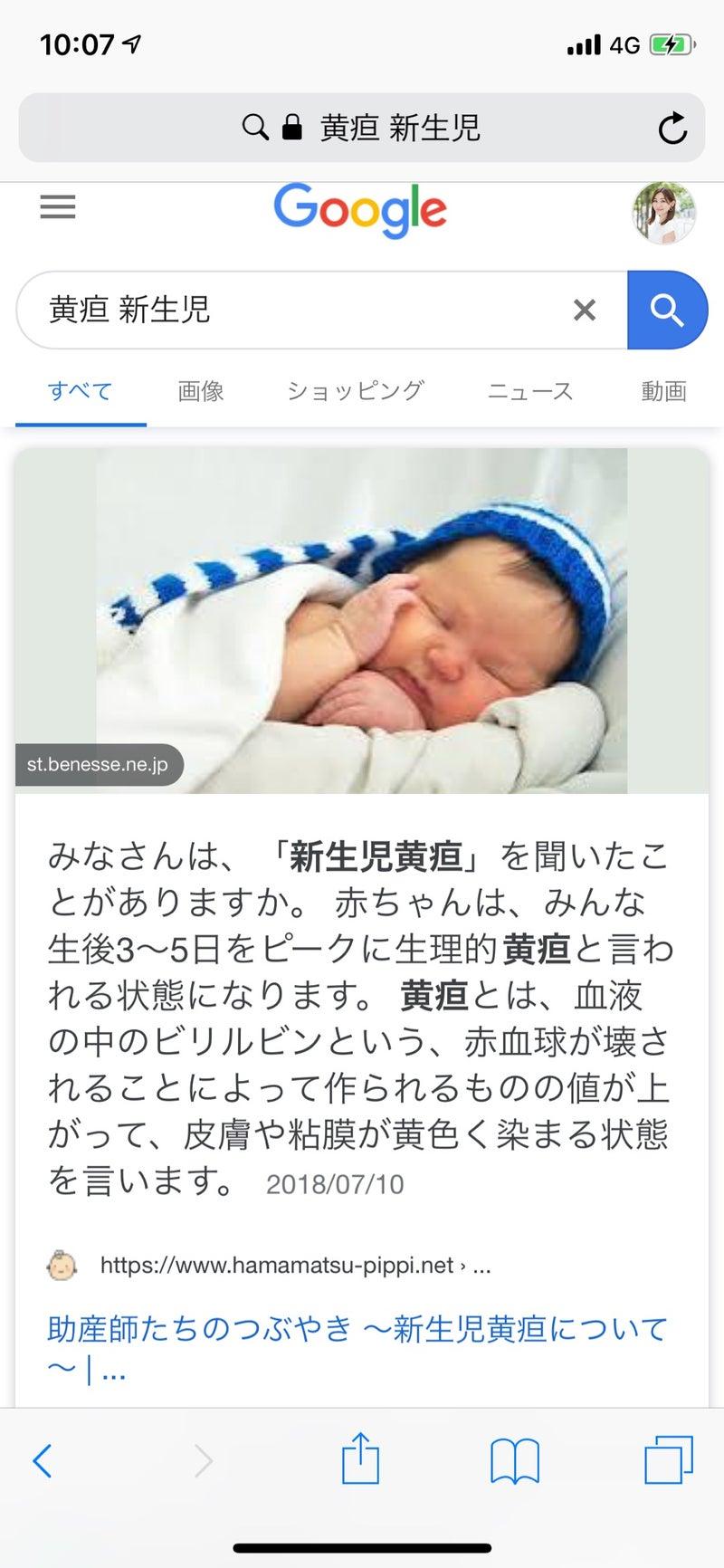 生理 的 黄疸 新生児