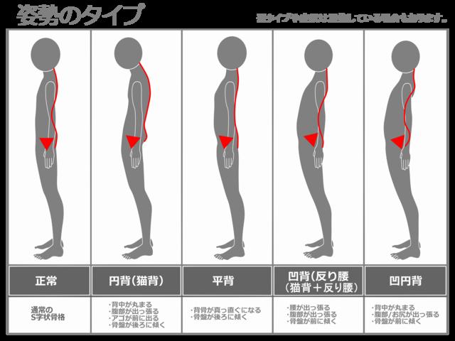 「姿勢チェック 写真無料」の画像検索結果