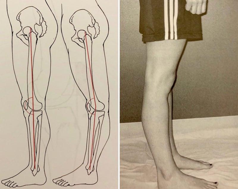 張 膝 改善 反
