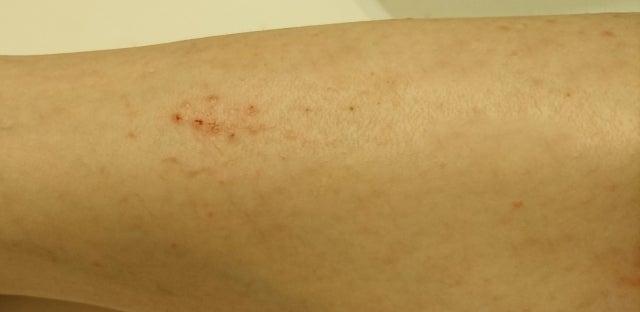 血行 が 良く なると 痒く なる 【危険?!】かゆい!!なぜマナラを使うと痒くなる?