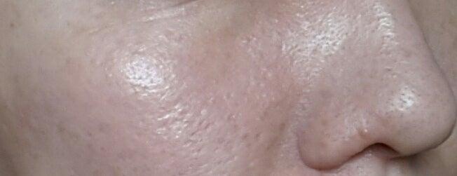 アヤナスワイエスラボ305日目の毛穴写真