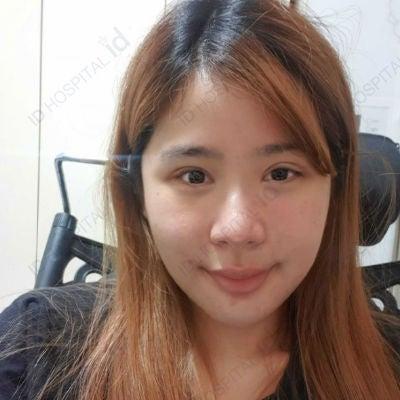 id両顎手術術後