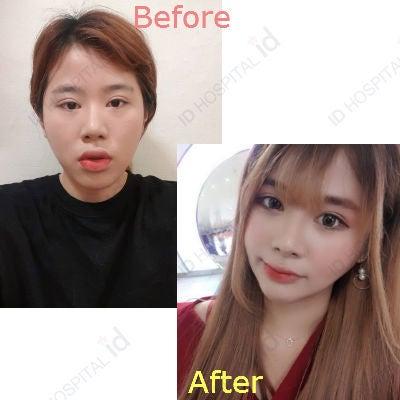 id両顎手術