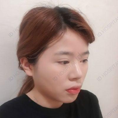id両顎手術症例