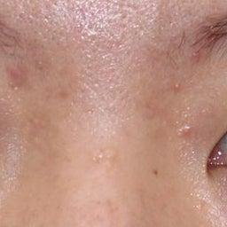 画像 21歳・女性 埋没法重瞼術 の記事より 1つ目