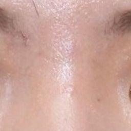 画像 21歳・女性 埋没法重瞼術 の記事より 2つ目