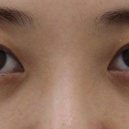 画像 28歳・女性 目の下のクマ治療 の記事より 3つ目