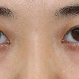 画像 28歳・女性 目の下のクマ治療 の記事より 2つ目