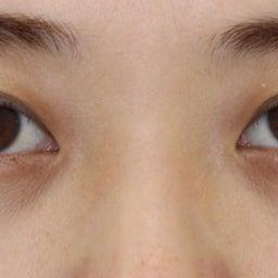 画像 28歳・女性 目の下のクマ治療 の記事より 4つ目