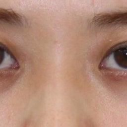 画像 28歳・女性 目の下のクマ治療 の記事より 6つ目