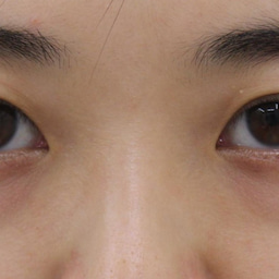 画像 28歳・女性 目の下のクマ治療 の記事より 1つ目