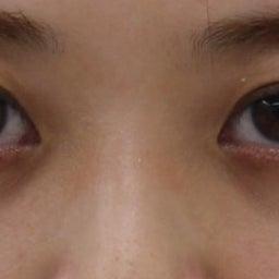 画像 28歳・女性 目の下のクマ治療 の記事より 5つ目