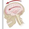 ラグビーと脳震盪の画像