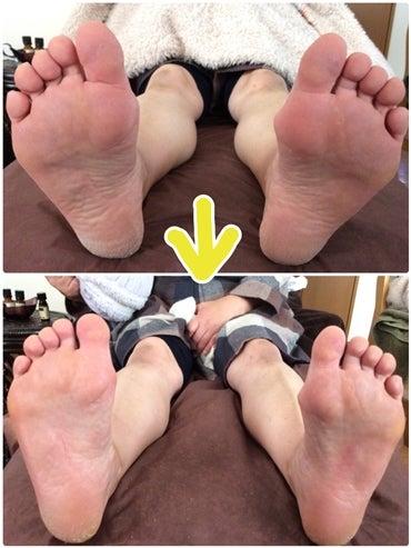 「こんなに足のキメが、細かくなるなんて♪」の記事より