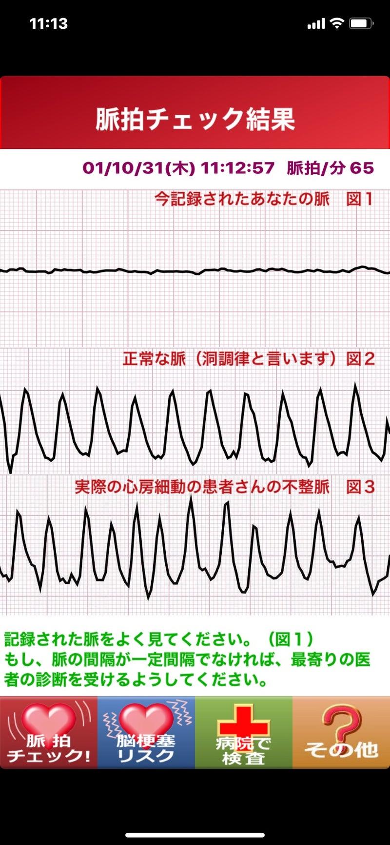 脈拍 数 正常