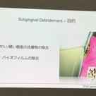 【歯周病を治す】超音波スケーラー〜基礎編〜の記事より