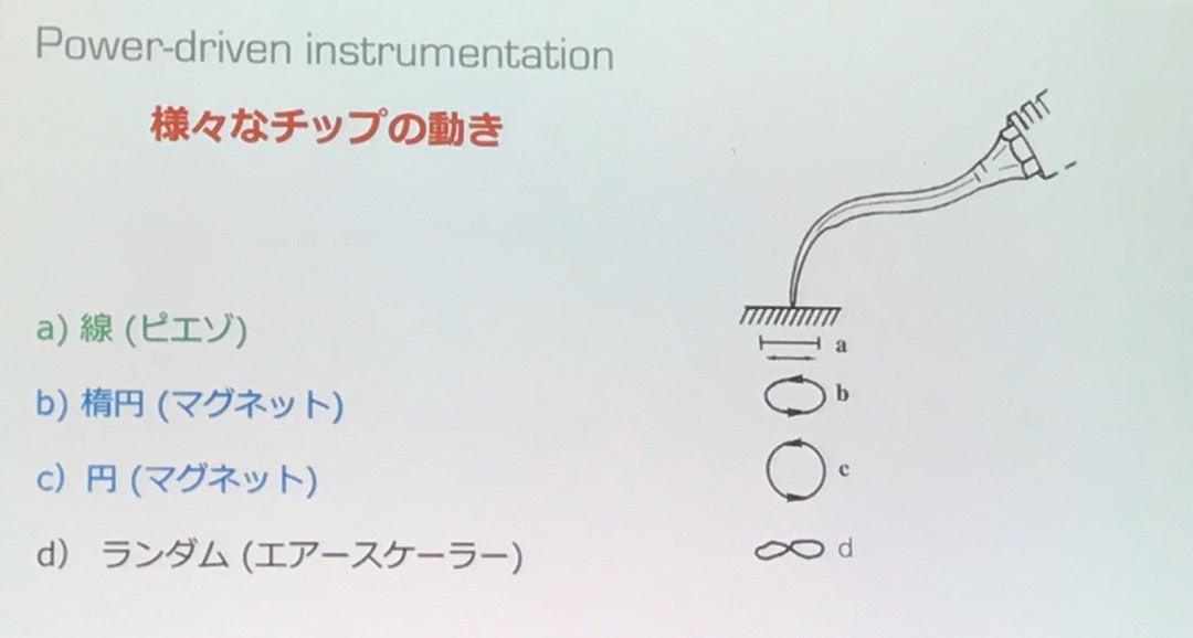 【超音波】マグネット式とピエゾ式の違いの記事より