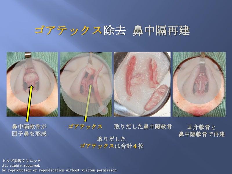 ゴアテックス除去 鼻中隔延長(再建)