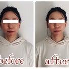 【京都府*久世郡からご来店】お顔や鼻筋の歪みも改善するエンドリングフェイシャル♪の記事より