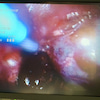 腹腔鏡下胆嚢切除術の画像