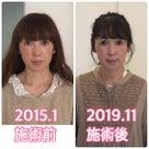 【滋賀県・守山市からご来店】継続間もなく5年〜毛穴も歪みもなくなった!美は継続なり。の記事より