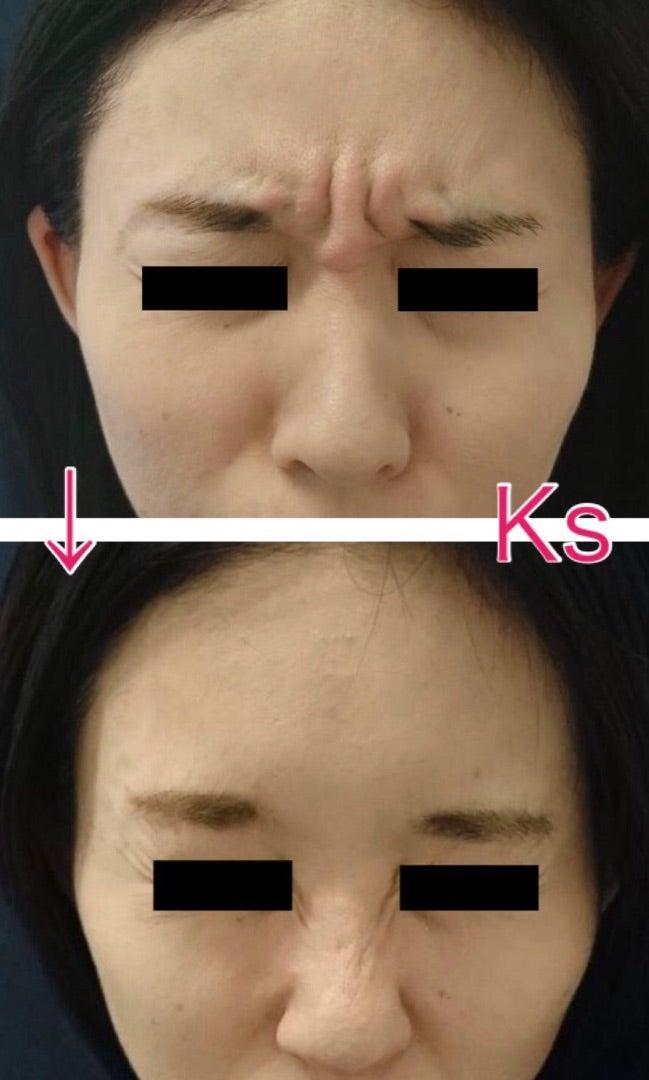 「眉間のシワ」を改善するボトックス治療