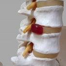 「これは椎間板ヘルニア」なんですか?の記事より