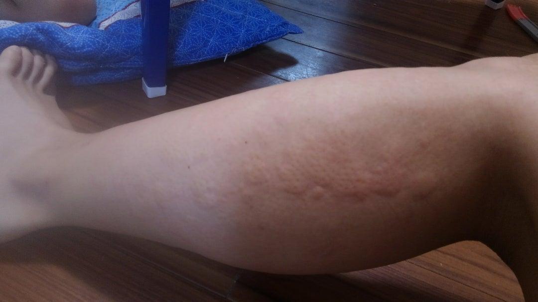 妊娠 超 初期 蕁 麻疹