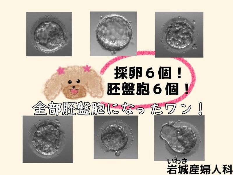 盤 胞 移植 ブログ 胚