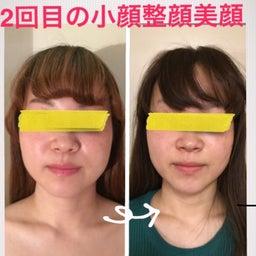 画像 ■お顔が小さくなる流れ/豊橋のダイエットサロン の記事より 3つ目