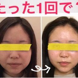 画像 ■お顔が小さくなる流れ/豊橋のダイエットサロン の記事より 1つ目
