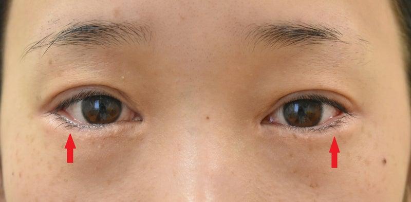 まぶた 赤い した 皮膚科医が教える!かゆくて赤い「ドライまぶた」の原因と対策(ウィメンズヘルス)