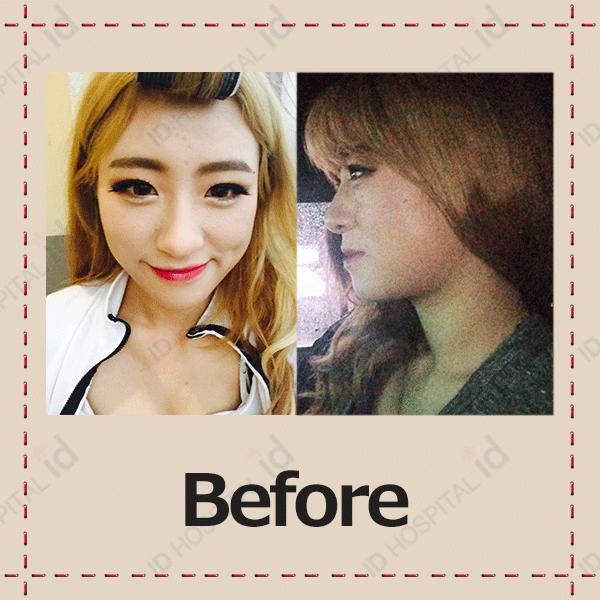 韓国両顎手術 症例