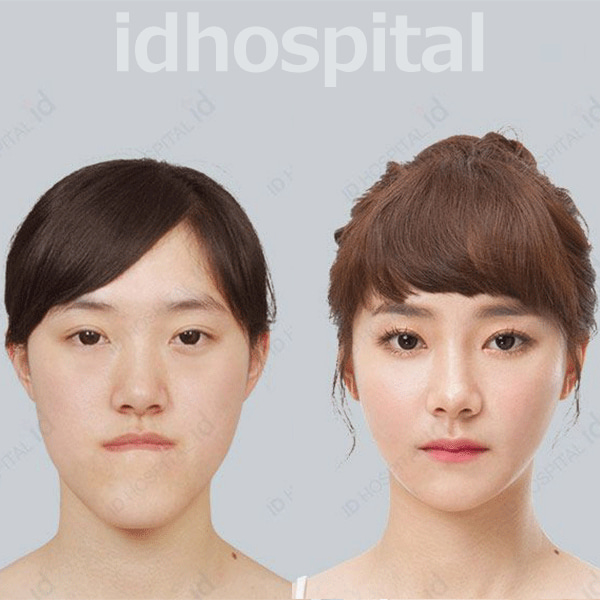 しゃくれ 韓国id美容外科