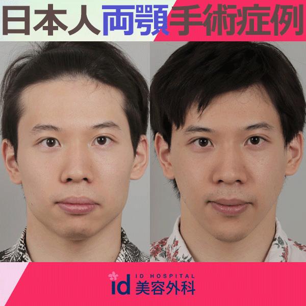 日本人 メンズ 両顎 症例