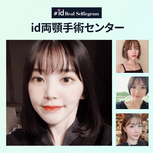 韓国id美容外科 両顎手術