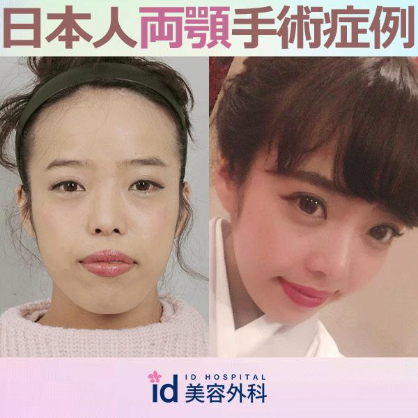 日本人 両顎 症例