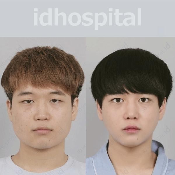 韓国 メンズ整形 症例