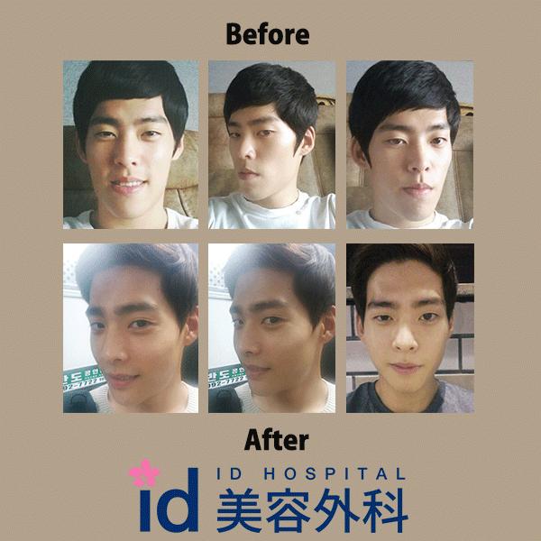 メンズ 両顎手術
