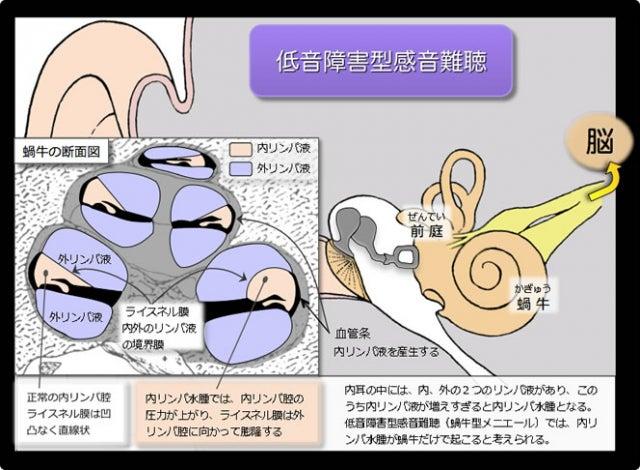 音 感 難聴 型 障害 低音 性