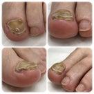 自分の肥厚した足の爪、どうやってケアをすればいいのか教えて欲しい!の記事より